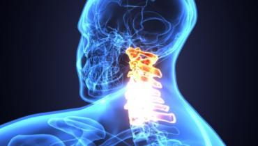 Spinal Cord Stimulation Reduces Post-CABG AF: Pilot Study