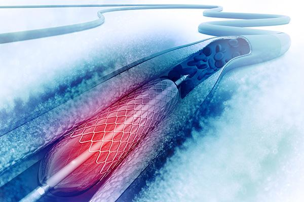 DES With Biodegradable Polymers Stand Up Well Against Durable-Polymer Stents in the Short Term