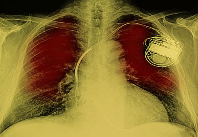 Conduction Problems Requiring Permanent Pacemakers Continue to Vex TAVR Field