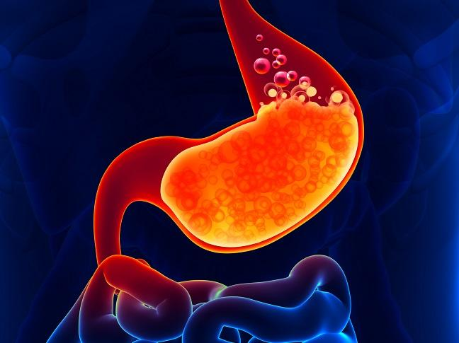 Proton Pump Inhibitor Use Tied to Elevated Ischemic Stroke Risk