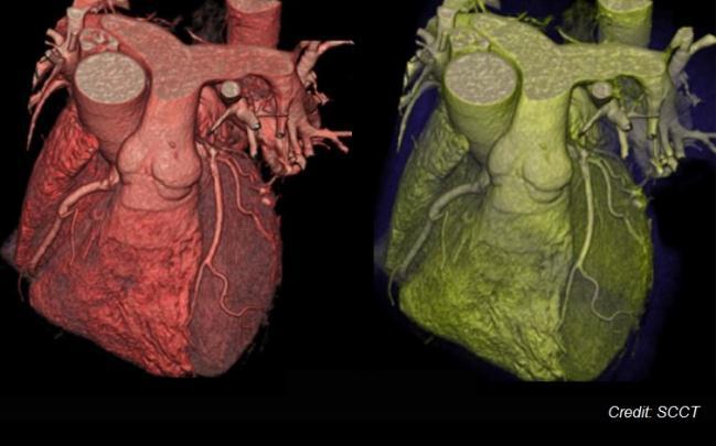 CT 血管造影术在英国胸部疼痛评估中走向前列