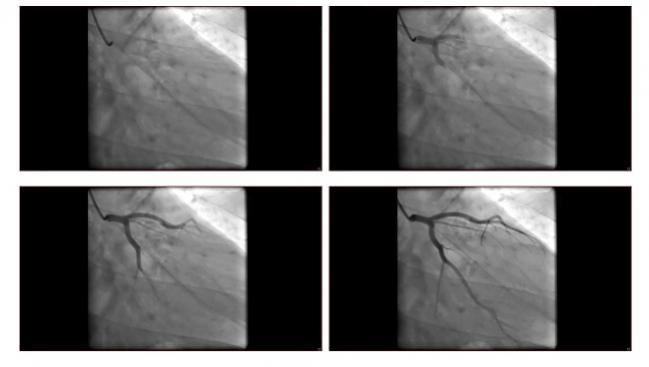 TWENTE: Resolute and Xience Stents Show Comparable Outcomes Up to 5 Years