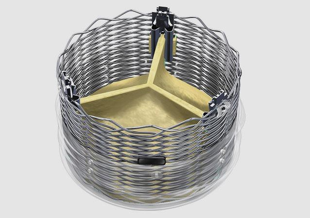 Lotus TAVR Device with Depth Guard Reduces Risk of Pacemaker Implantation