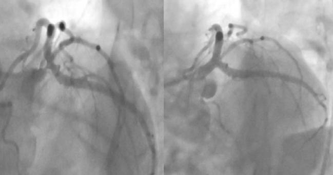 Rate of Incomplete Revascularization During PCI Is Highly Variable Across Operators