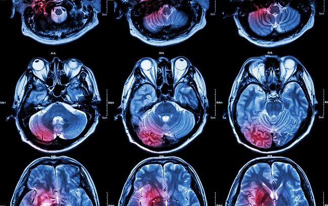 NeuroARC Proposes New Standards for Assessing Neurologic Damage in CV Clinical Trials