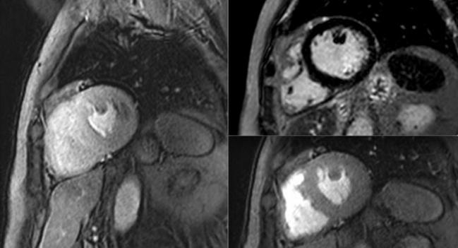 CMR Perfusion Imaging Holds Its Own Against Invasive Approach to Managing Stable Angina