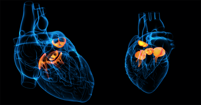 MitraClip for Tricuspid Regurgitation Gains Traction but Still in Preliminary Stages