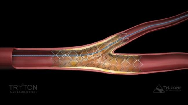 FDA Gives Thumbs Up to Side Branch Stent for Bifurcation Lesions