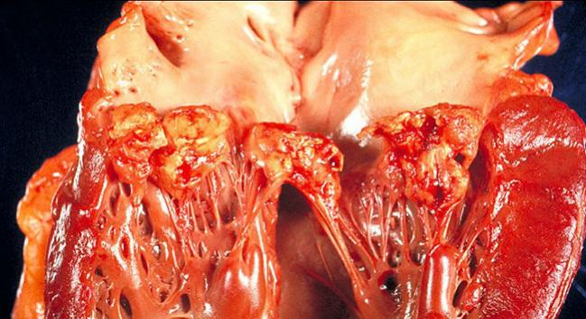 More Conservative Antibiotic Prophylaxis for Infective Endocarditis Seems Safe, Appropriate
