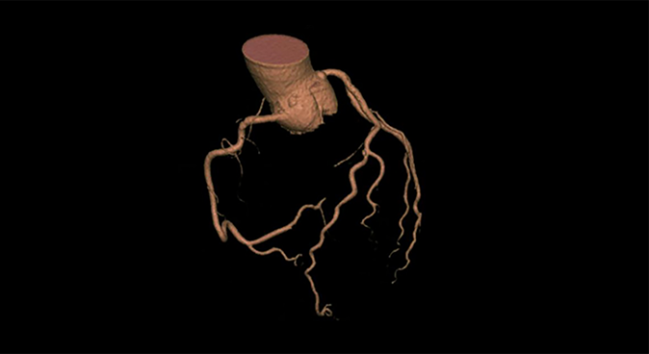 Using Coronary CTA to Evaluate Suspected CAD May Improve Patient Outcomes