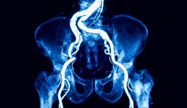 Iliac Artery Occlusions Best Addressed by Self-Expanding Stents: ICE Trial
