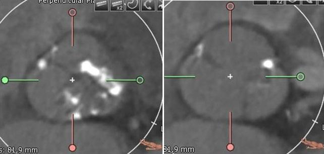 CT Scans Before and After TAVR Show Tricuspid, Bicuspid Valves Are Reassuringly Similar