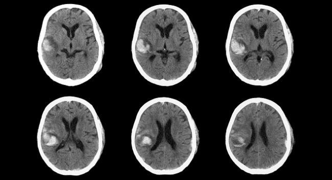 DOACs Not Associated With Major Bleeding, Mortality: Observational Analysis