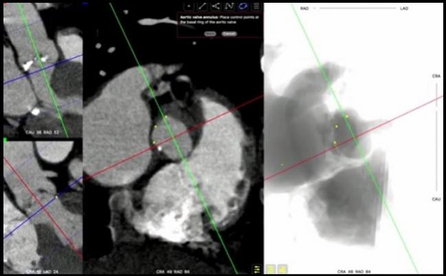 Long-term Evidence Supports Better Survival for Women Than Men After TAVR