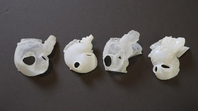 3-D Printing Opportunities Emerge for Cardiologists, Hospitals, and Device Companies Alike