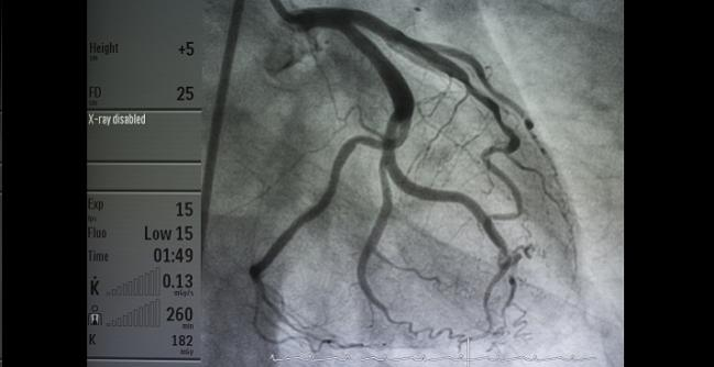 Angiography, Revascularization Safe in Acute MI Patients Taking OACs for Atrial Fibrillation
