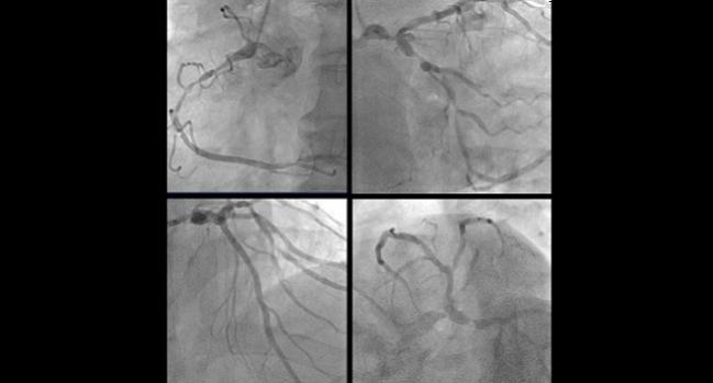 PCI Comparable to CABG in Left Main Coronary Disease: Meta-analysis
