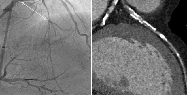 Myocardial Perfusion Imaging May Enhance CT-Based Evaluation of Stable Angina: CRESCENT II