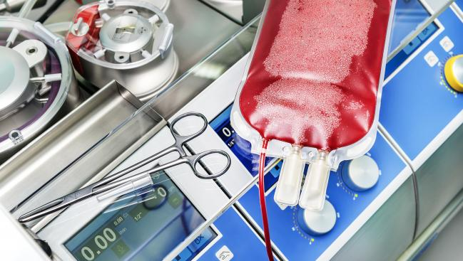 New Guideline Aims to Standardize Anticoagulation During Cardiopulmonary Bypass