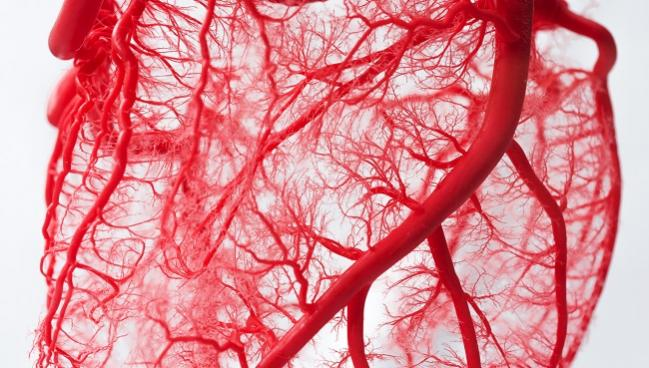 Complete Revascularization for STEMI the Way to Go Even Though Evidence Isn't Definitive: Meta-analysis