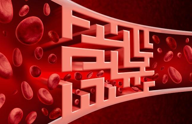 Ticagrelor: Better Platelet Blockade Post-TAVR?