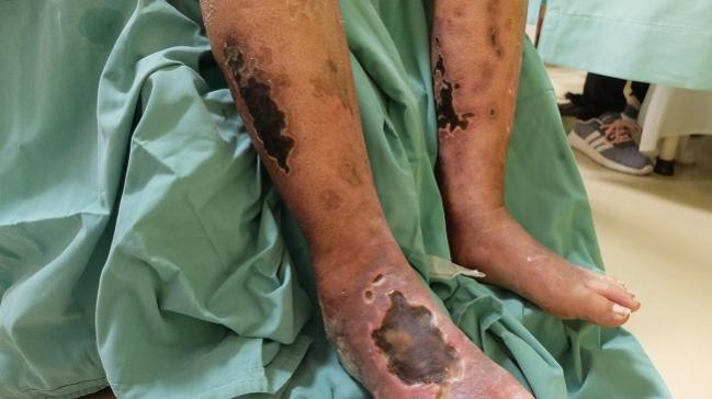 COMPASS Approach Helps With Leg Complications in Patients With PAD