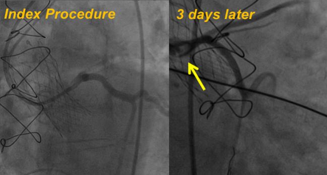 Delayed Coronary Obstruction After TAVR: Prevalence, Causes, and Solution Explored for Deadly Complication
