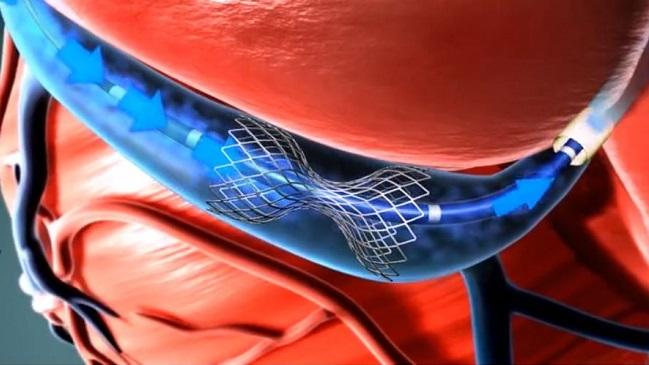 Positive Real-World Results for Coronary Sinus Reducer in Patients With Refractory Angina