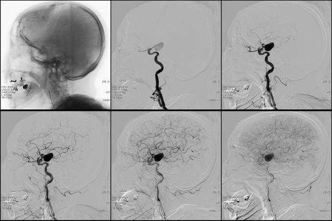 Real-World Study Raises Concerns About Initiating Carotid Stenting in Acute Phase