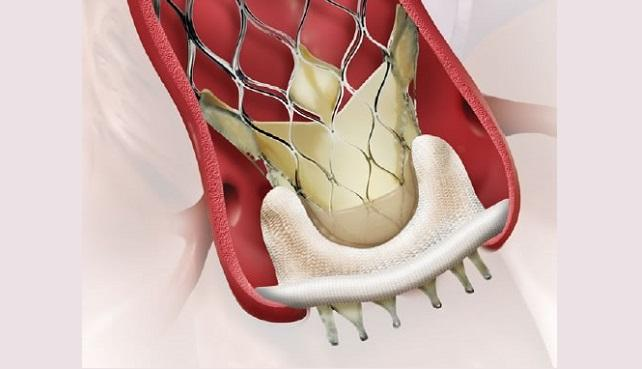 Valve-in-Valve TAVR: Mortality, Adverse Events Similar to Redo Surgery at 30 Days