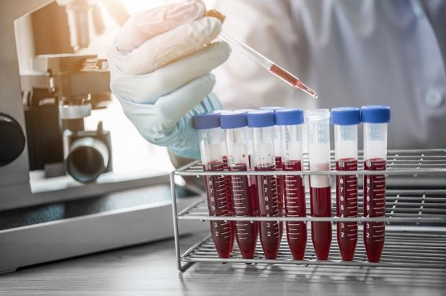 Amyloid Beta (1-40) Shows Promise as a Blood Marker to Risk Stratify NSTE ACS Patients