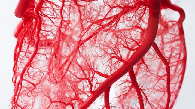 define coronary microvascular disease