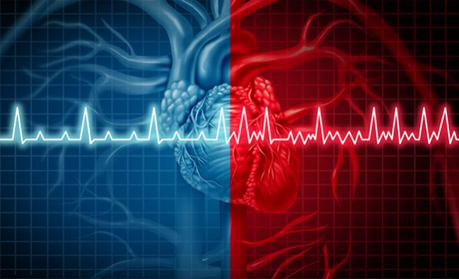 Ischemic Stroke Risk Scoring May Not Be Accurate for Patients With Atrial Flutter