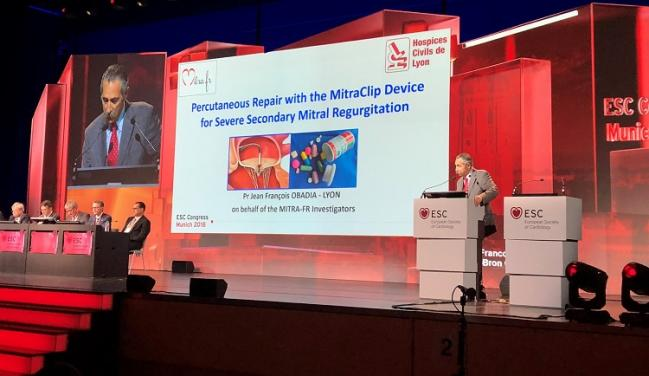 MITRA-FR: No Benefit of MitraClip in Functional MR