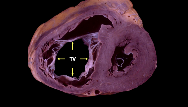 Clips and Rings for Tricuspid Regurgitation: Early Data Speak to Progress and Challenges