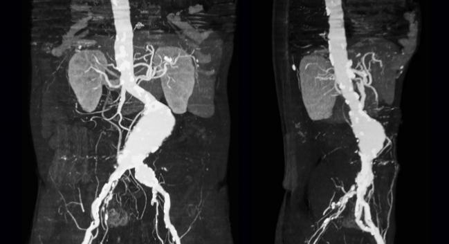 FDA: All AFX Endovascular AAA Systems Now Under Class I Recall