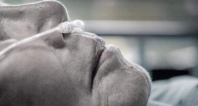 New BMJ Guidance Urges Prudence With Supplemental Oxygen, Especially in Acute MI, Stroke
