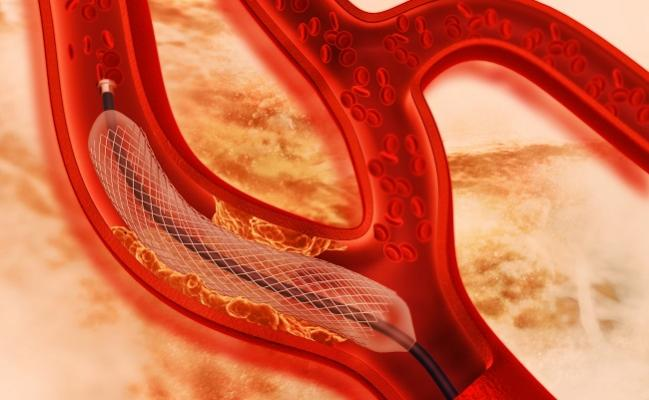 New-Generation DES Better Than Older Stents Over 10 Years, Regardless of Polymer Type