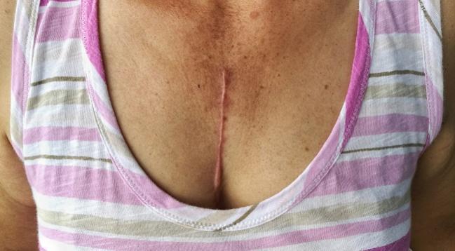 TiCAB: Ticagrelor No Help for Preventing Graft Failure Post-CABG