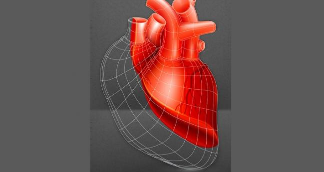 Cell Therapy No Help for Cardiac Recovery in HF Patients With LVADs