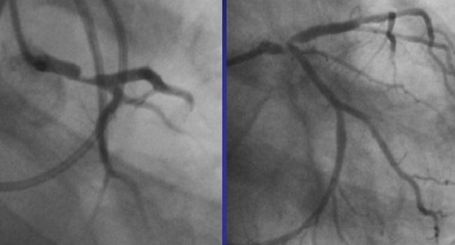 Unprotected Left Main PCI? US Interventionalists Aren't Biting (Yet)
