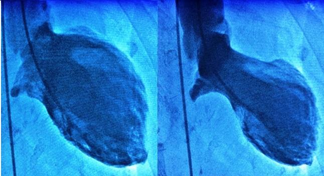 Takotsubo Syndrome Not Necessarily 'Benign' or Fleeting