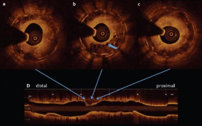 Slight Advantage for DES Over DCB for In-Stent Restenosis: Updated Meta-analysis