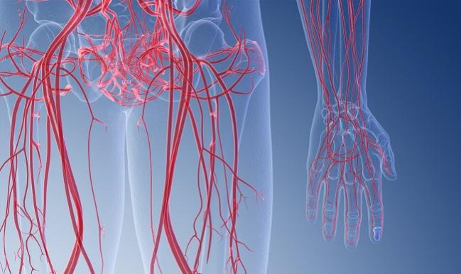 Eluvia Sustains Lead Over Zilver PTX in Patients With Diabetes: IMPERIAL Subanalysis