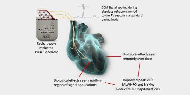 FDA Approves the Optimizer Smart Implantable Pulse Generator for Heart Failure