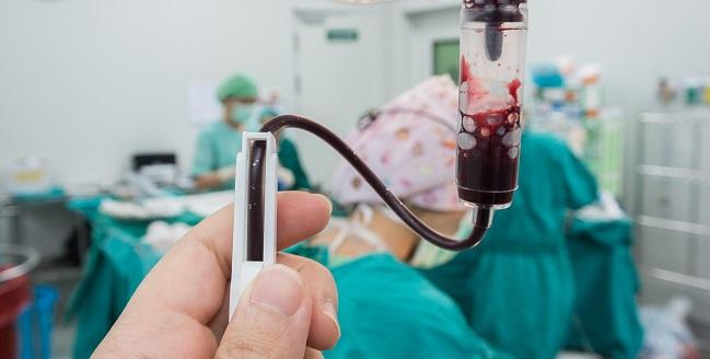 Baseline Anemia Ups Physician-Guided DAPT Discontinuation Rates After PCI