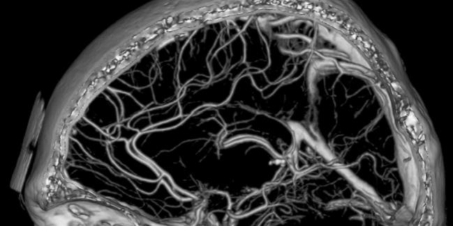 https://stock.adobe.com/images/computed-tomography-angiography-of-the-brain-vessels/4926020