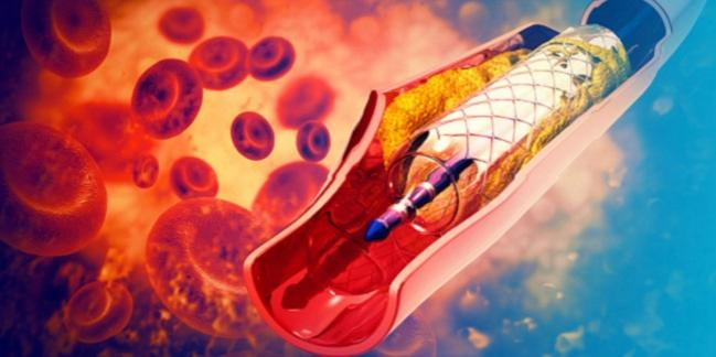 Three Years On, Absorb BVS Still Doesn't Improve Myocardial Blood Flow