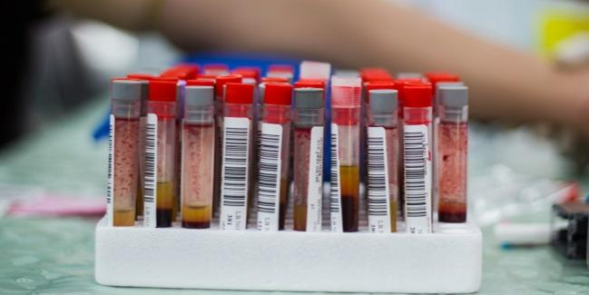Bempedoic Acid/Ezetimibe Combo Lowers LDL Cholesterol in High-Risk Patients
