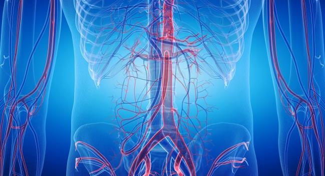 OVER Trial: Long-term Mortality Similar After Endovascular and Open AAA Repair